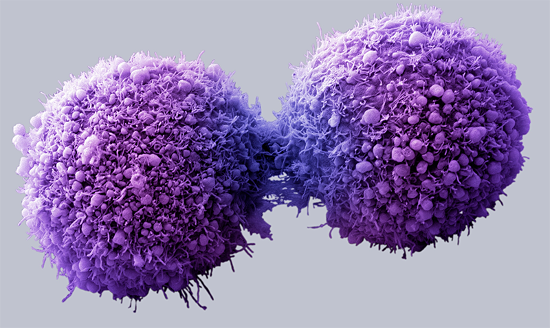Find out how you can beat cancer.
